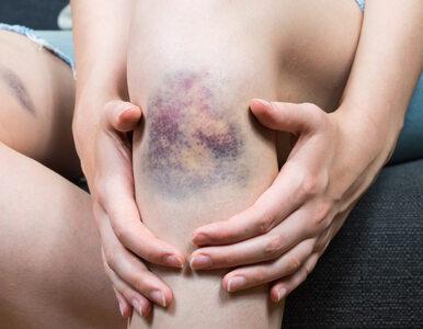 Uraz kolana u młodzieży zwiększa ryzyko choroby zwyrodnieniowej stawów