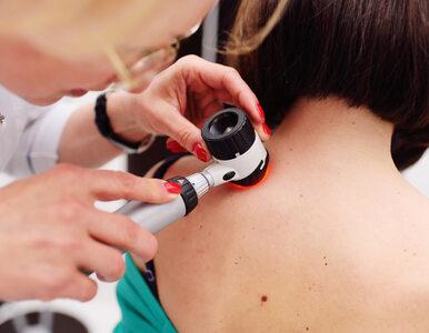 Witamina A zmniejsza ryzyko raka skóry